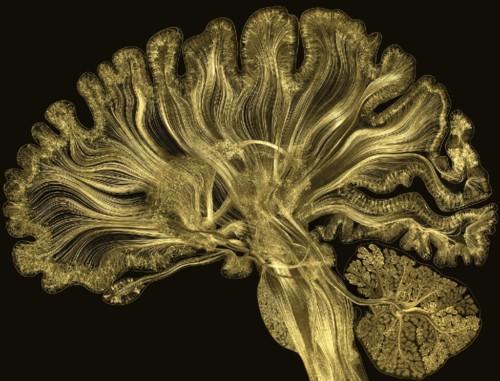 cérebro-imagem (1).jpg