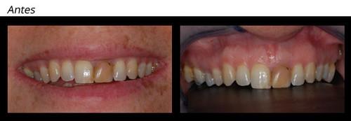 Branqueamento Interno Solucao Conservadora Para Dentes Nao Vitais