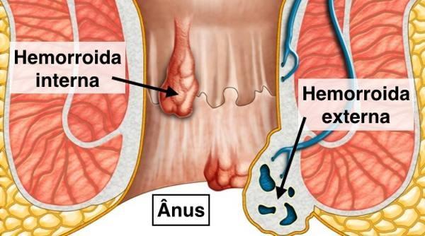 hemorróidas-externas-internas.jpg